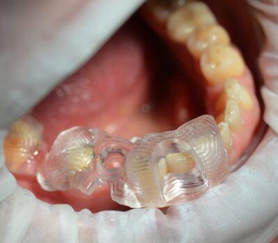 Implanty zębów <span>Łask</span> 10