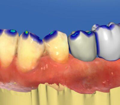 Implanty zębów <span>Łask</span> 9