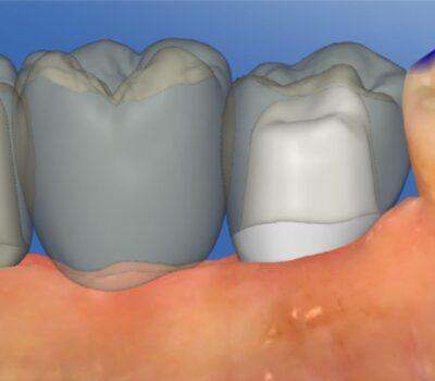 Implanty zębów <span>Łask</span> 12