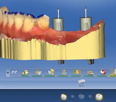 Implanty zębów <span>Łask</span> 13